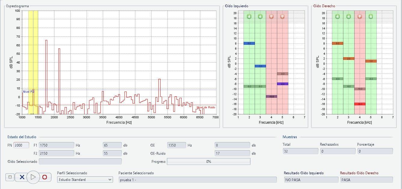 Gráficos de estudio del software jOEA del equipo de otoemisiones