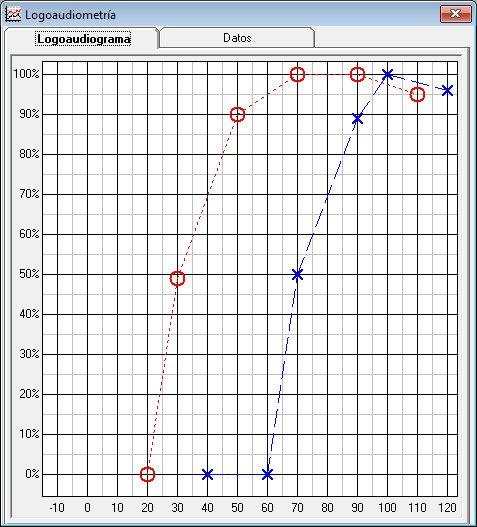 Gráfico de logoaudiometría software SGA